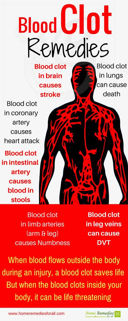 Blood Clots Causes Symptoms And Treatment