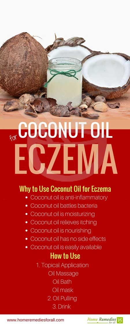 coconut oil for eczema infographic