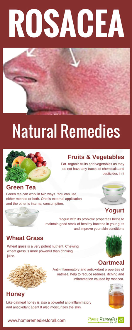 Natural Remedies For Rosacea Skin Care