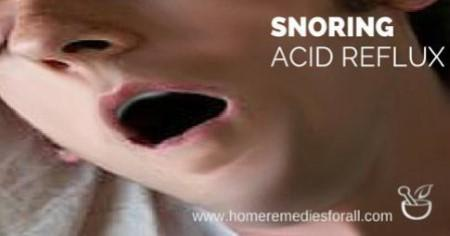 Snoring due to Acid Reflux