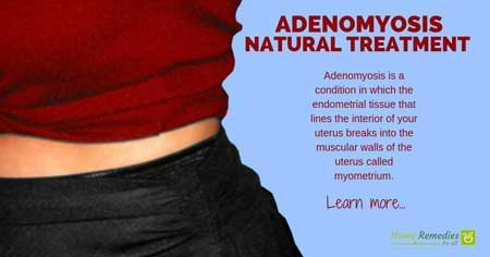 5 Home Remedies for Adenomyosis - Effective Natural Treatment
