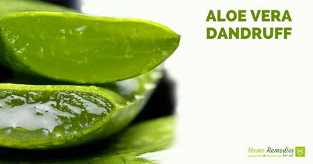 Image result for Aloe vera dandruff""