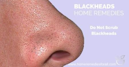 5 ways to get rid of blackheads on nose fast, Skeleton