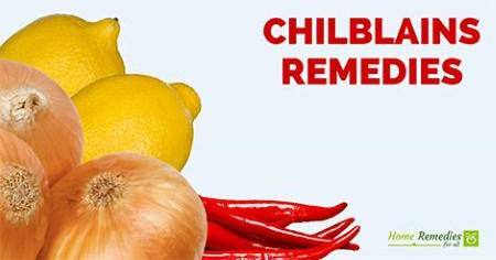 Natural Cure For Chilblains