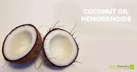 coconut oil for hemorrhoids