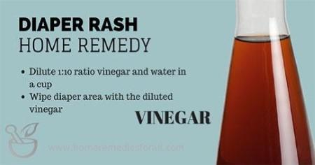 Picture of Home Remedies for Diaper Rash Vinegar