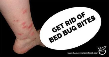 How to Get Rid of Bed Bug Bites