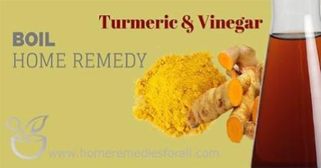 Picture of Home Remedies for Boils Turmeric and Vinegar
