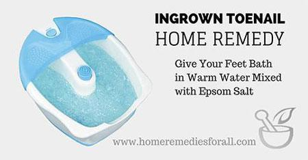 Picture of Home Remedies for Ingrown Toenail Foot Bath