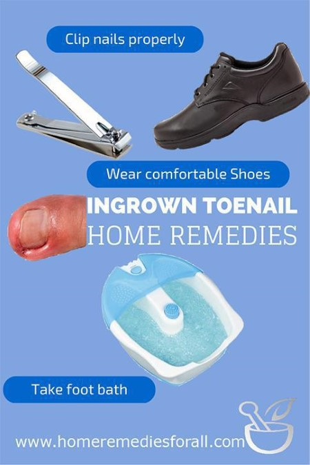 Picture of 3 Simple Home Remedies for Ingrown Toenail