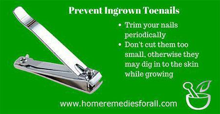 Picture of Home remedies for Ingrown Toenail Better Foot Hygeine