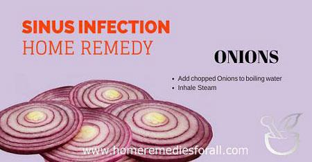 Image of Home Remedies for Sinus Infection Onions