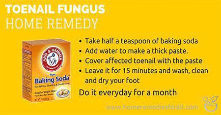 Picture of Home Remedies for Toenail Fungus Baking Soda