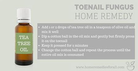 Picture of Home Remedies for Toenail Fungus Tea Tree Oil