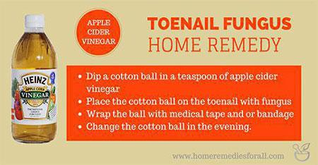Picture of Home Remedies for Toenail Fungus Apple Cider Vinegar