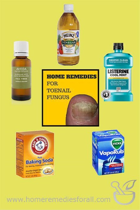 Picture of 5 Home Remedies for Toenail Fungus