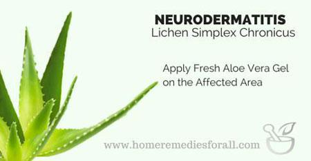 Apply Aloe Vera Gel for Lichen Simplex Chronicus