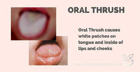12 Natural Remedies For Oral Thrush