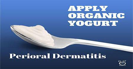 Perioral Dermatitis Cure with Yogurt