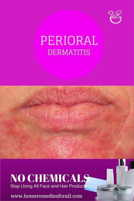Picture of Perioral Dermatitis Cures