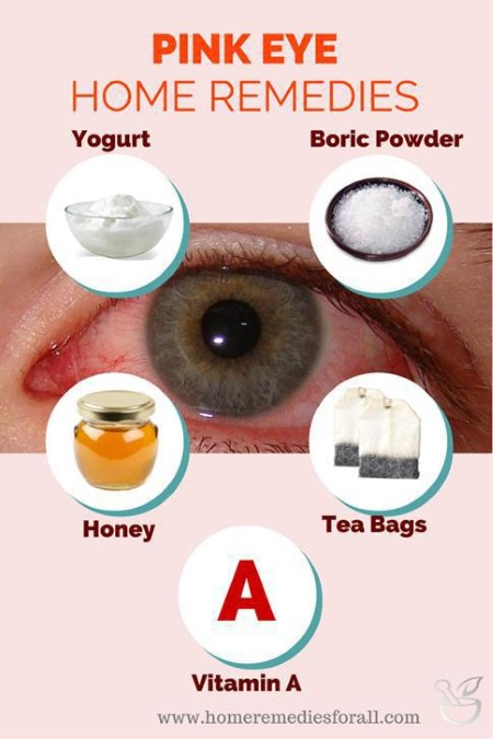 Natural home remedies for pink eye
