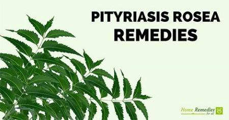 pityriasis rosea remedies