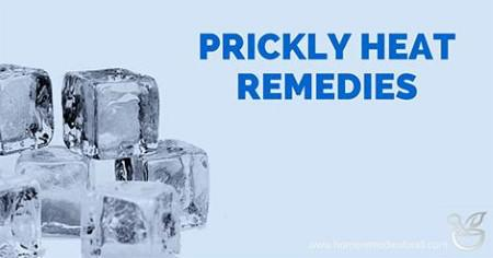 prickly heat home remedies