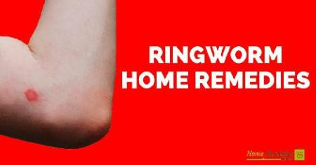 ringworm home remedies