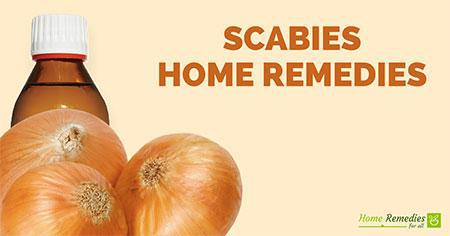 scabies home remedies