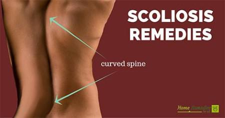 scoliosis home remedies