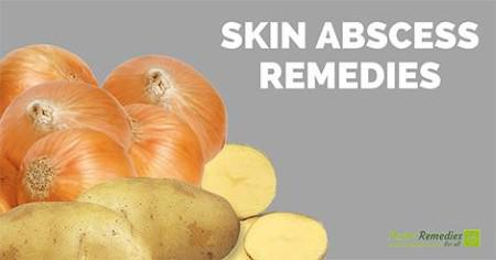 skin abscess home remedies