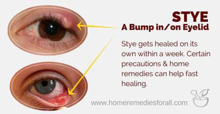 All Natural Stye Remedies