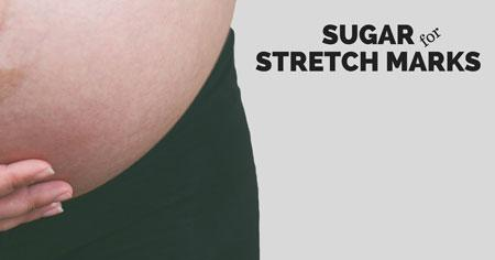 sugar for stretch marks