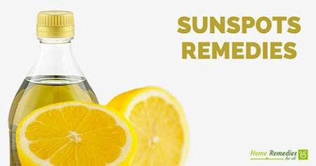 sunspots home remedies